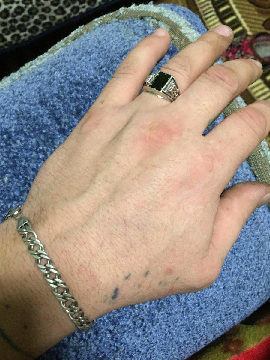 Кольцо очень красивое не большое и не маленькое.